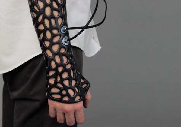 A 3D cast with ultrasound technology, which helps heal bones faster.